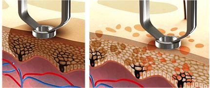 Lutronic Laser break down pigment